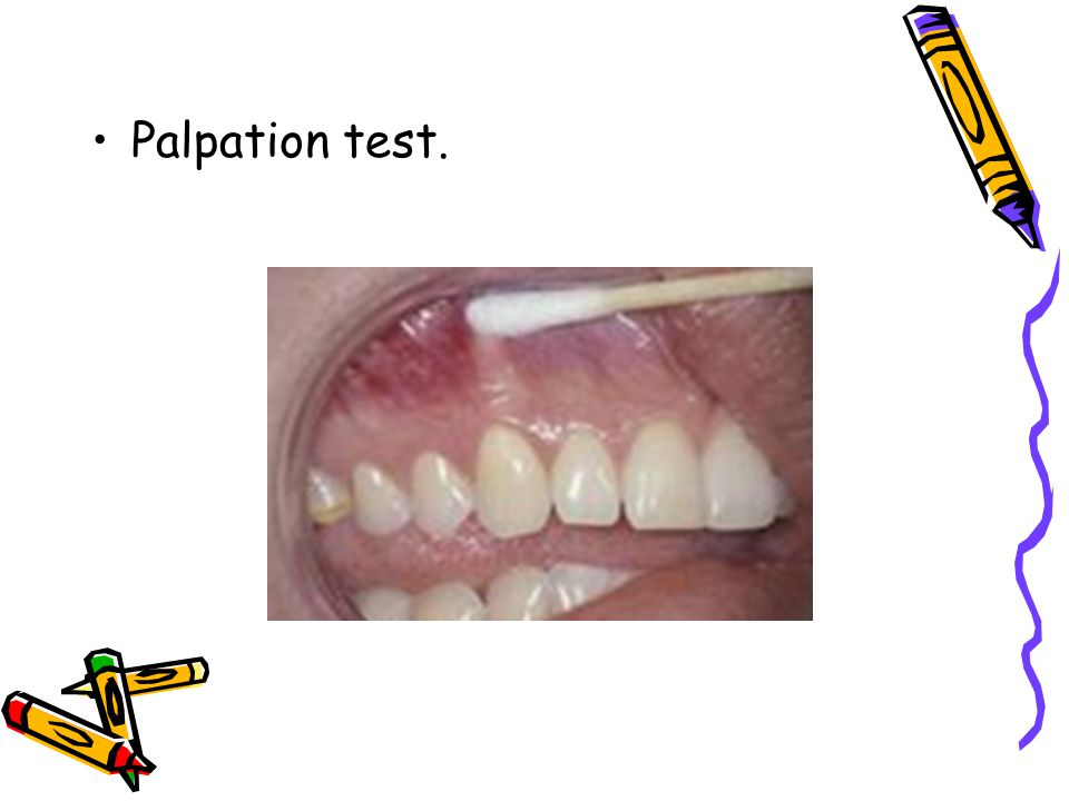 Palpation test.