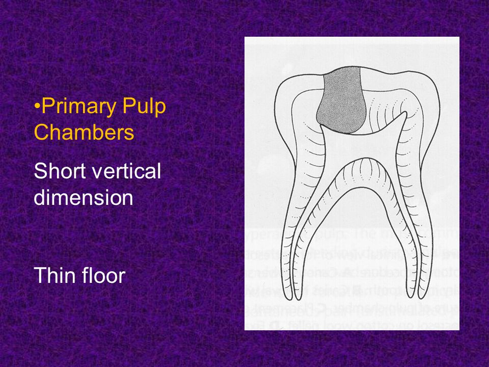 Primary Pulp Chambers Short vertical dimension Thin floor