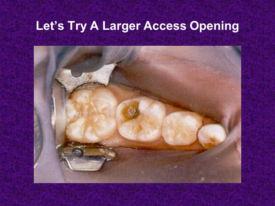 Let's Try A Larger Access Opening