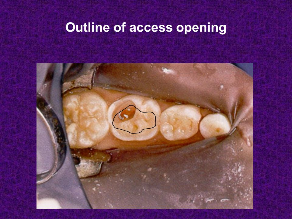 Outline of access opening