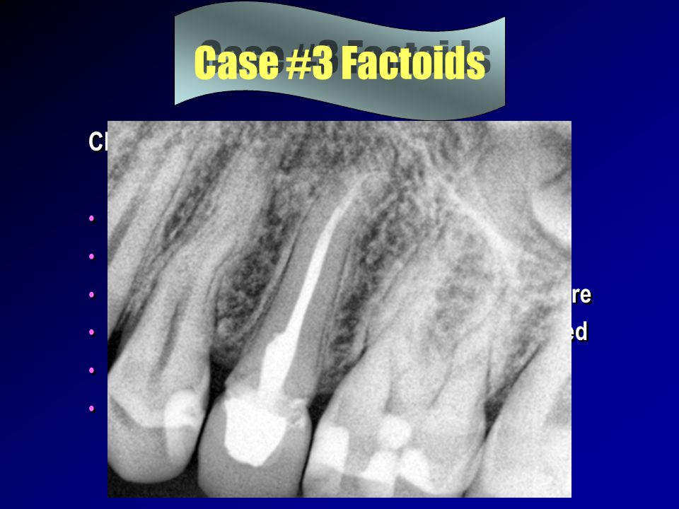Case #3 Factoids Chief complaint masticatory sensitivity