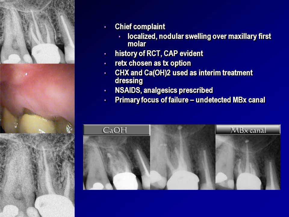 Chief complaint localized, nodular swelling over maxillary first molar. history of RCT, CAP evident.