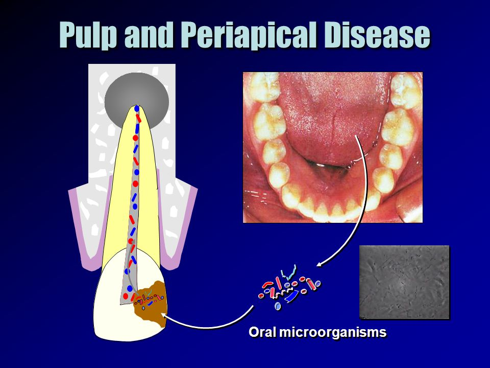 Pulp and Periapical Disease