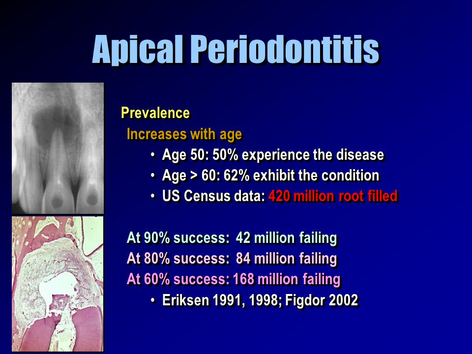 Apical Periodontitis Prevalence Increases with age