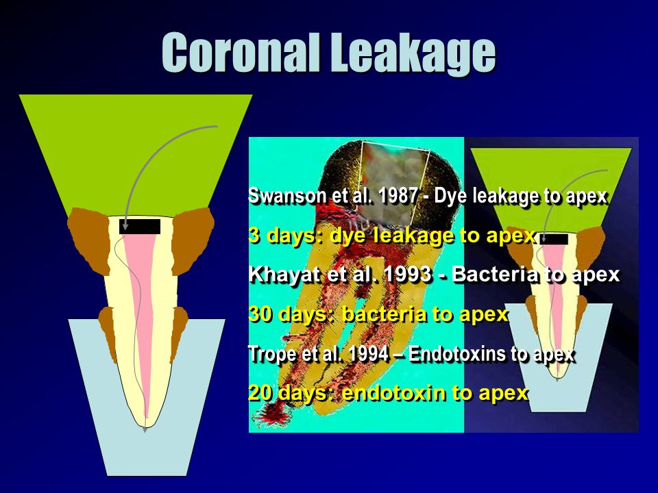 Coronal Leakage Swanson et al. 1987 - Dye leakage to apex