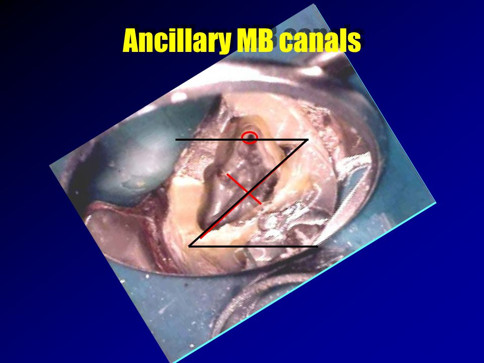 Ancillary MB canals