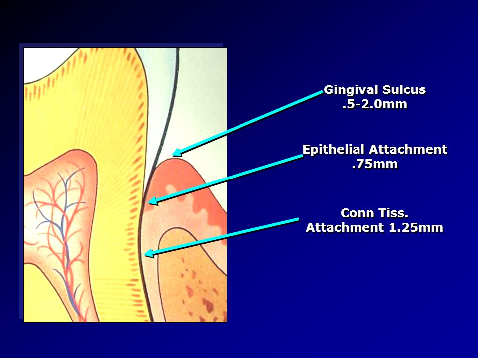 Epithelial Attachment .75mm Conn Tiss. Attachment 1.25mm