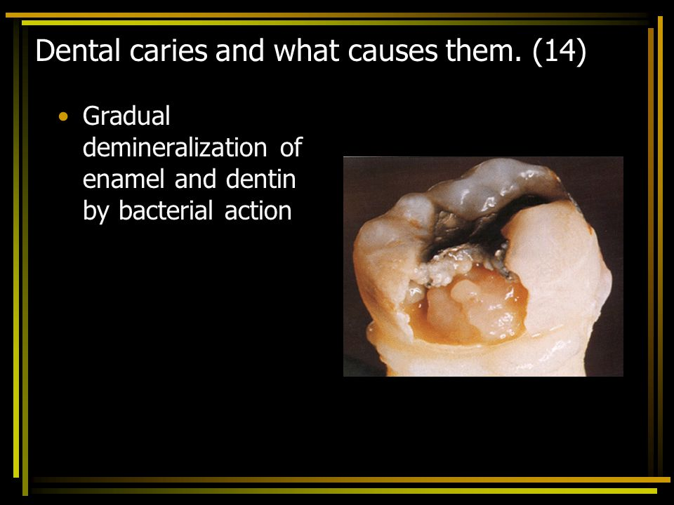 Dental caries and what causes them. (14)