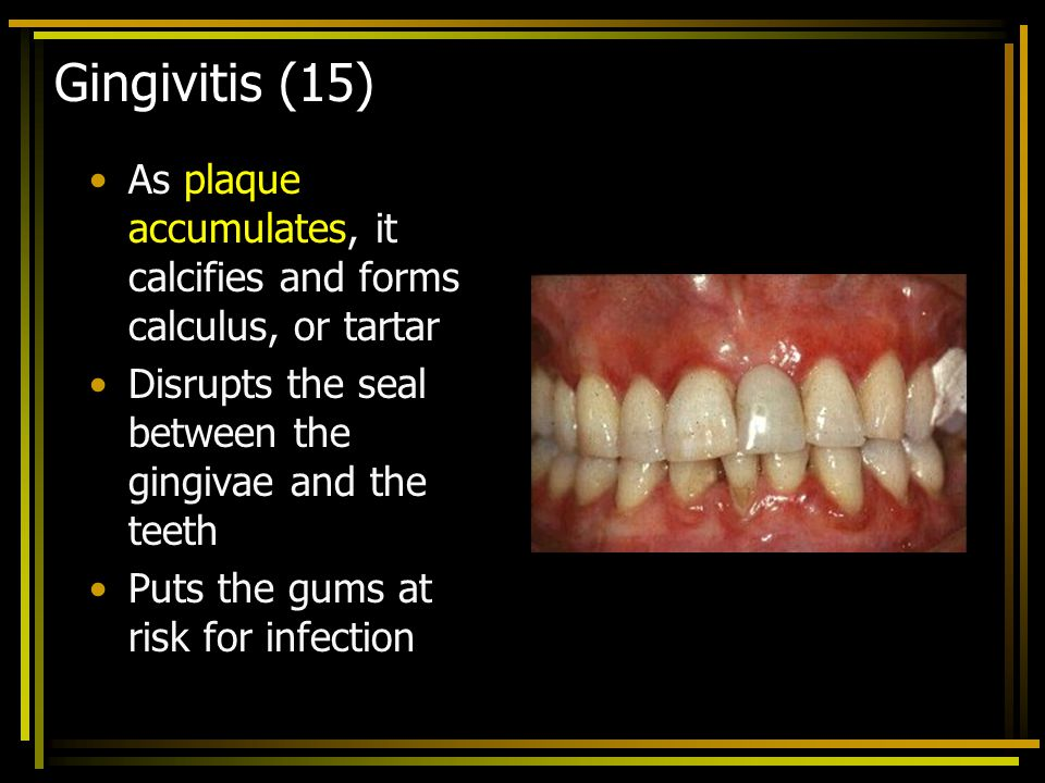 Gingivitis (15) As plaque accumulates, it calcifies and forms calculus, or tartar. Disrupts the seal between the gingivae and the teeth.