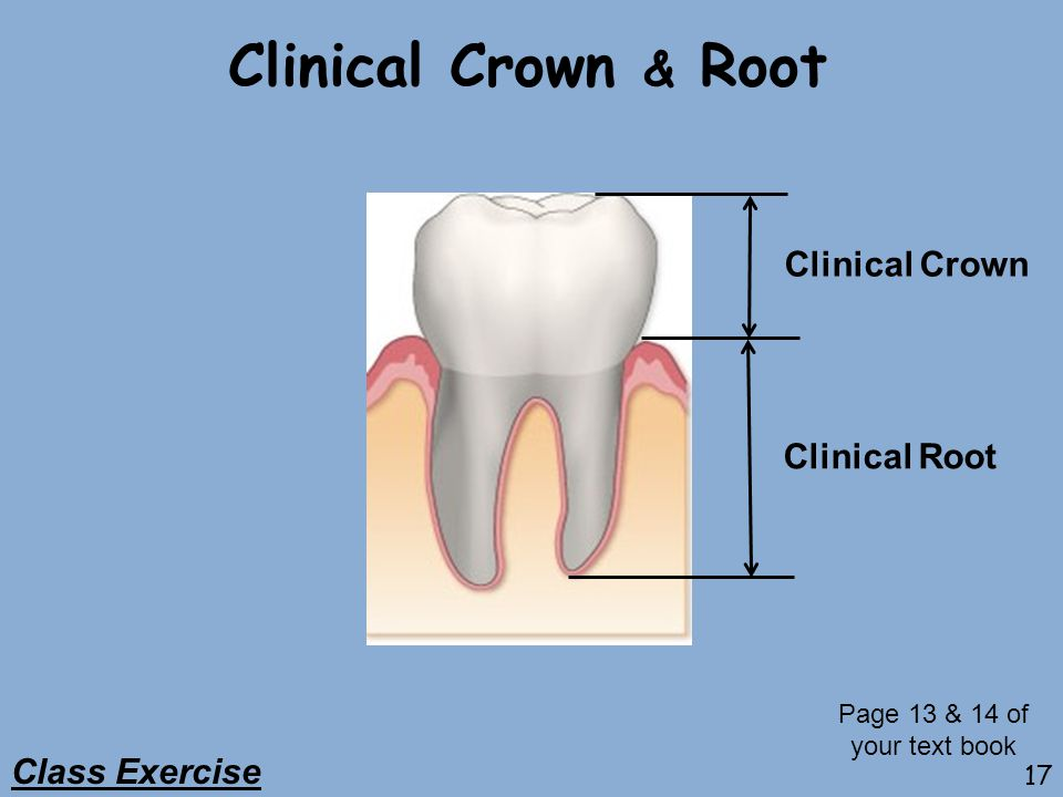 Clinical Crown & Root Clinical Crown Clinical Root Class Exercise