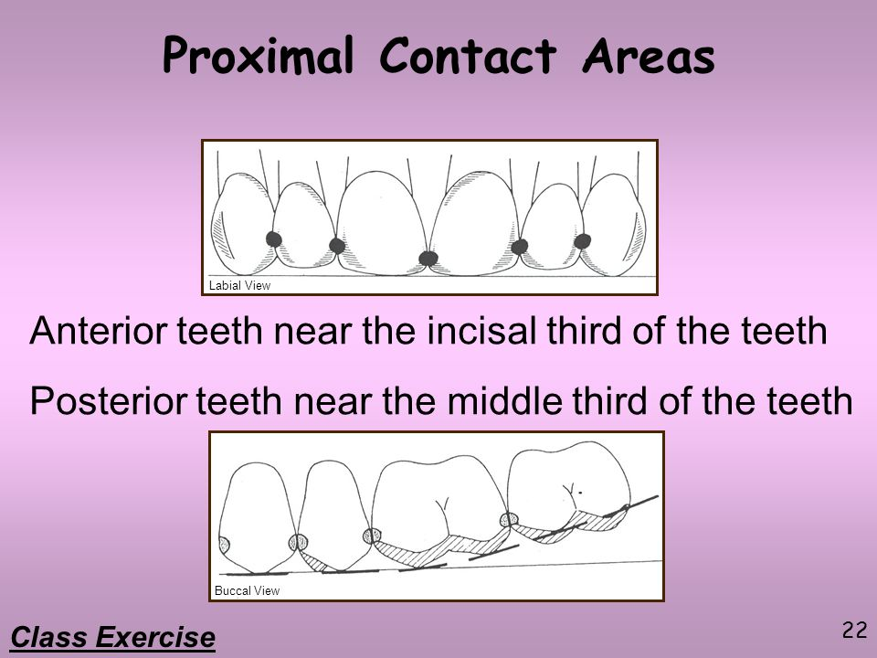 Proximal Contact Areas