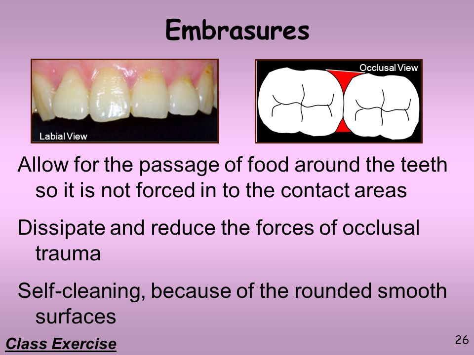 Embrasures Occlusal View. Labial View. Allow for the passage of food around the teeth so it is not forced in to the contact areas.