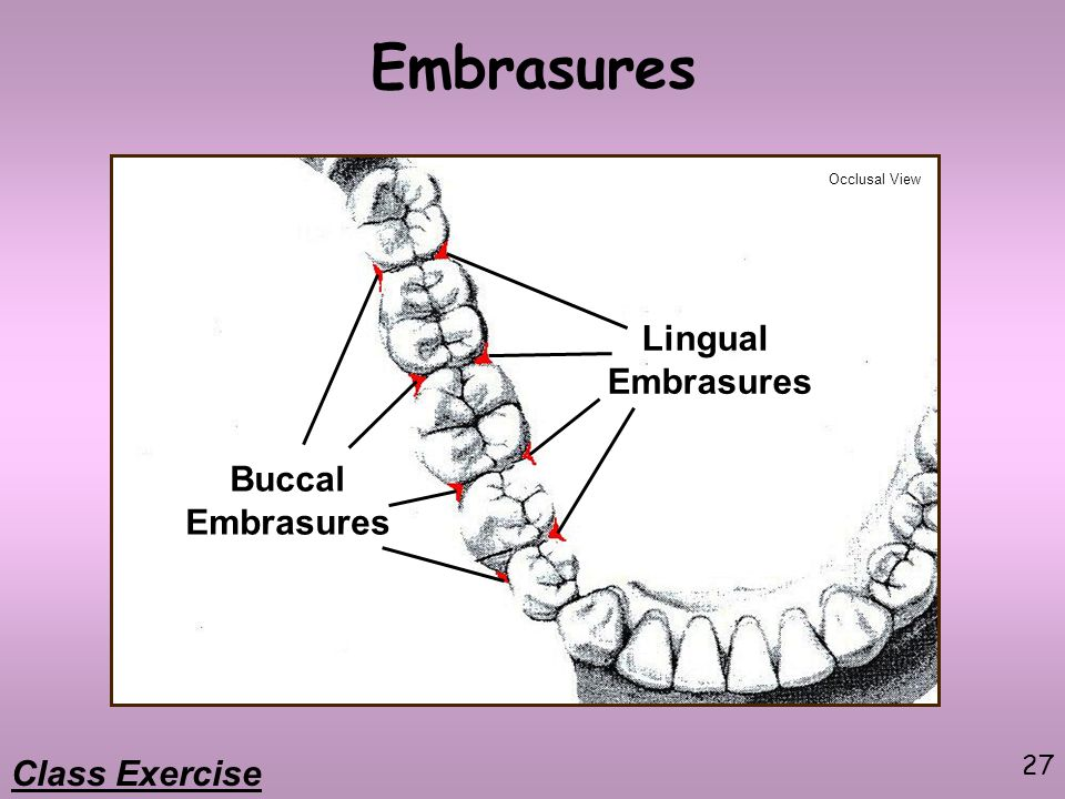 Embrasures Lingual Embrasures Buccal Embrasures Class Exercise