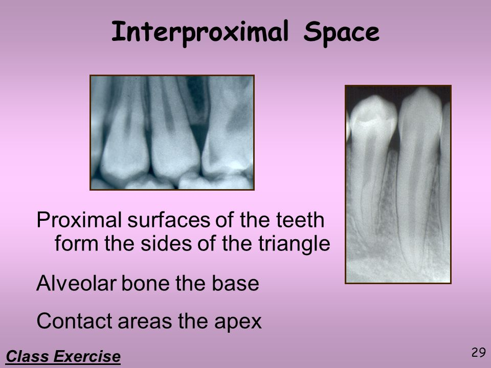 Interproximal Space Proximal surfaces of the teeth form the sides of the triangle. Alveolar bone the base.