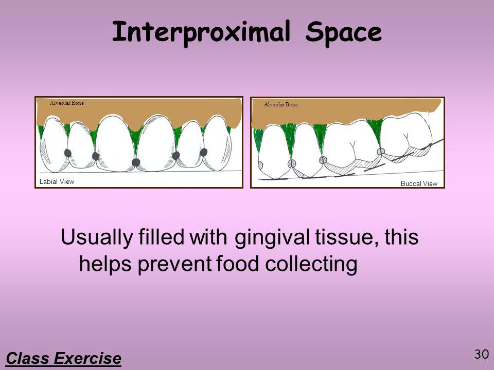 Interproximal Space Alveolar Bone. Alveolar Bone. Labial View. Buccal View.