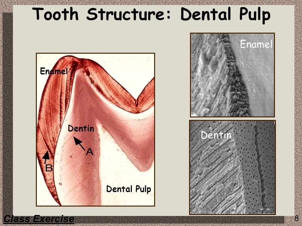 Tooth Structure: Dental Pulp