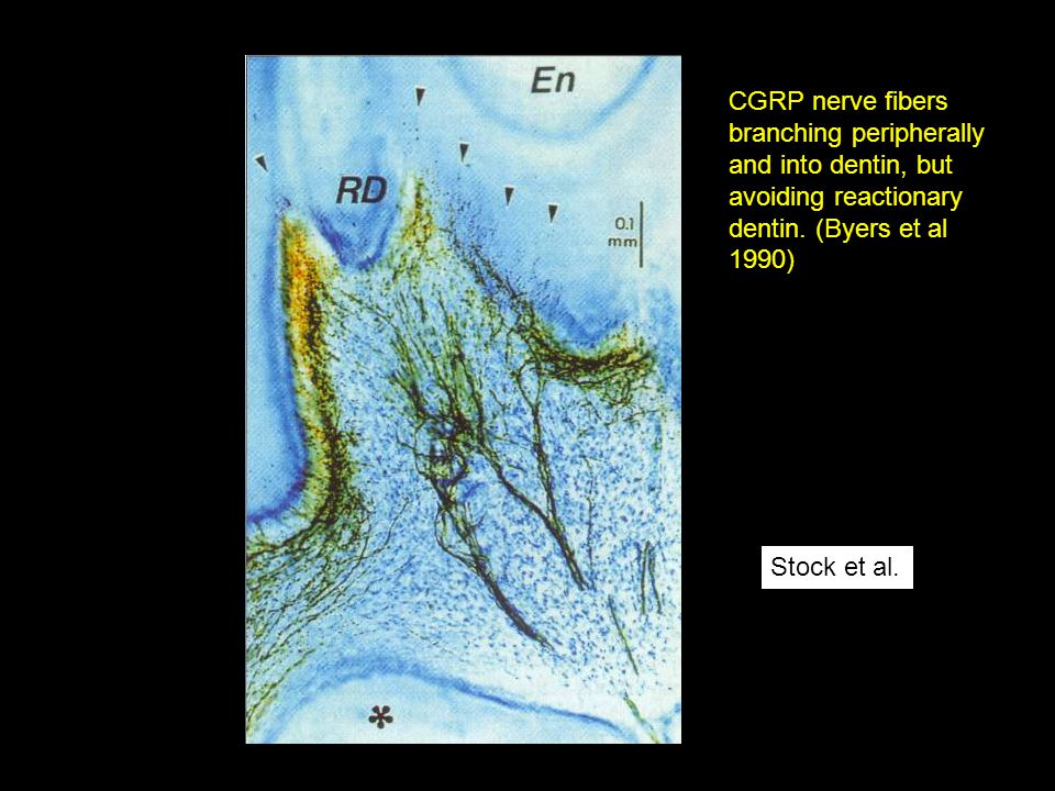 CGRP nerve fibers branching peripherally and into dentin, but avoiding reactionary dentin. (Byers et al 1990)
