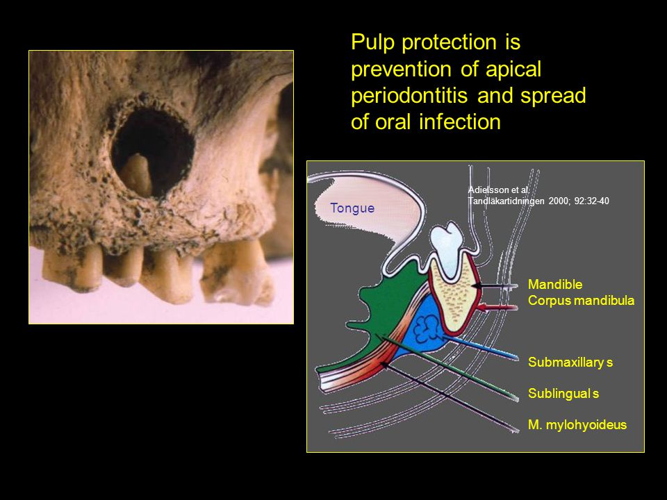 Pulp protection is prevention of apical periodontitis and spread of oral infection