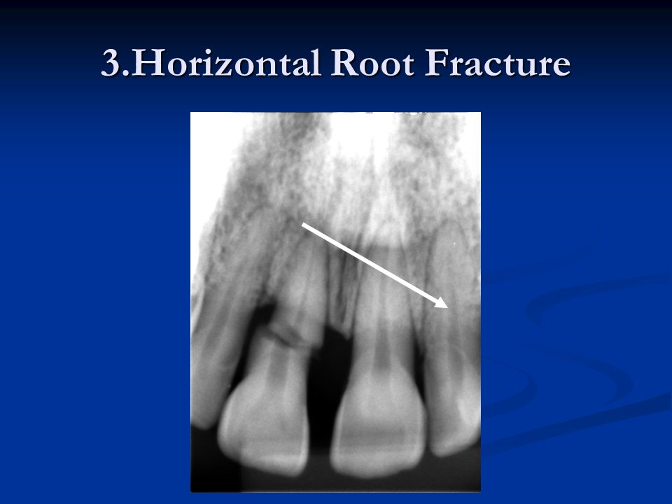 3.Horizontal Root Fracture