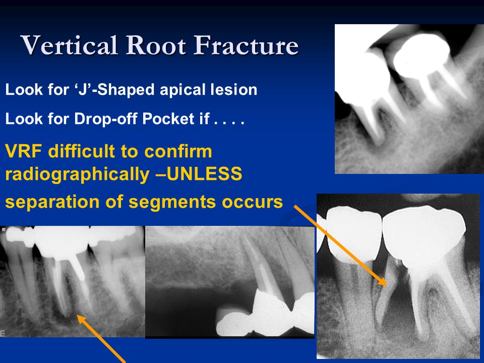 Vertical Root Fracture