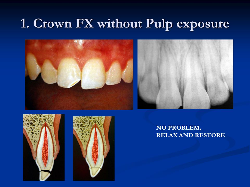 1. Crown FX without Pulp exposure