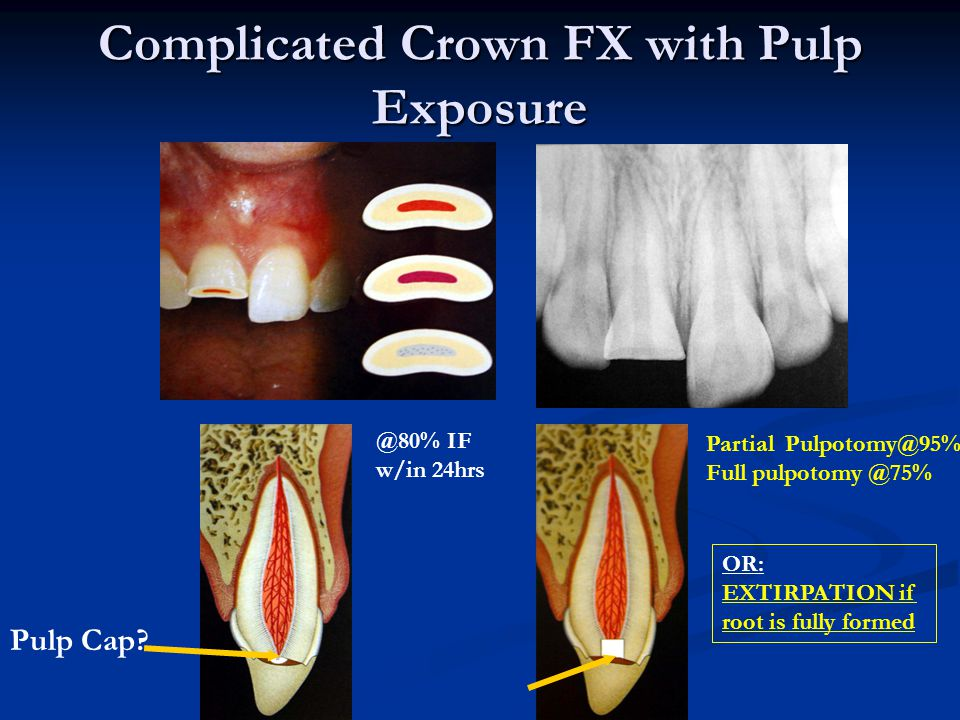 Complicated Crown FX with Pulp Exposure