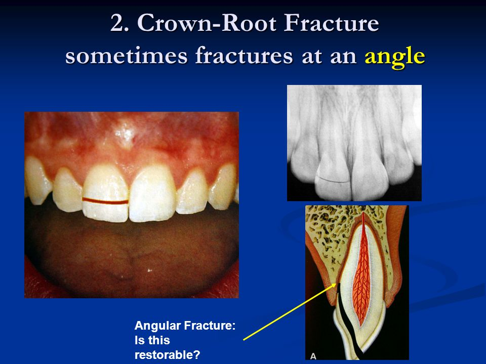 2. Crown-Root Fracture sometimes fractures at an angle