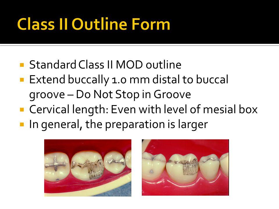 Class II Outline Form Standard Class II MOD outline