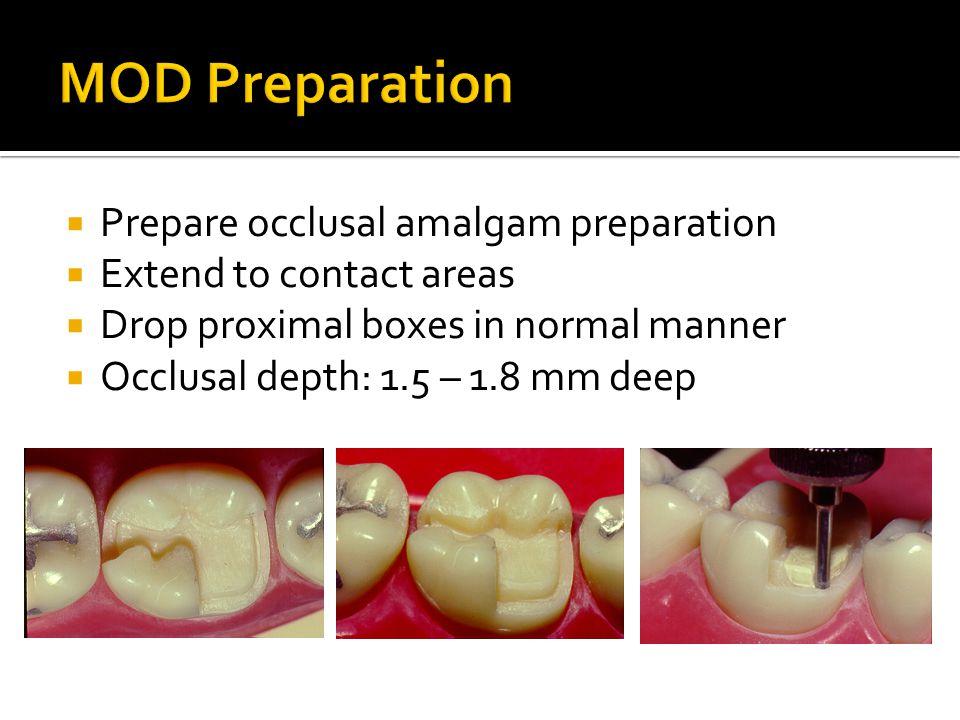 MOD Preparation Prepare occlusal amalgam preparation