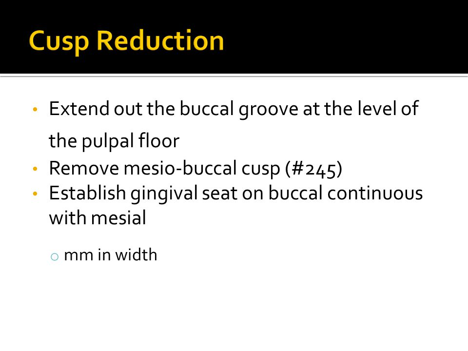 Cusp Reduction Extend out the buccal groove at the level of the pulpal floor. Remove mesio-buccal cusp (#245)