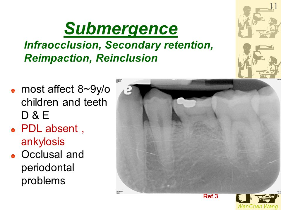 Submergence Infraocclusion, Secondary retention,
