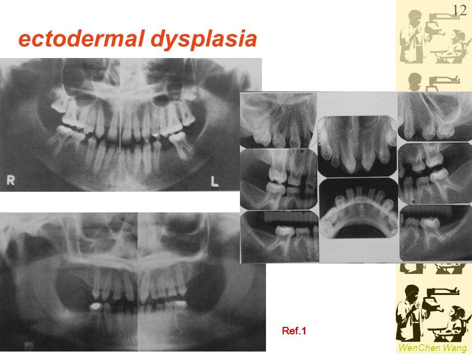 ectodermal dysplasia Ref.1