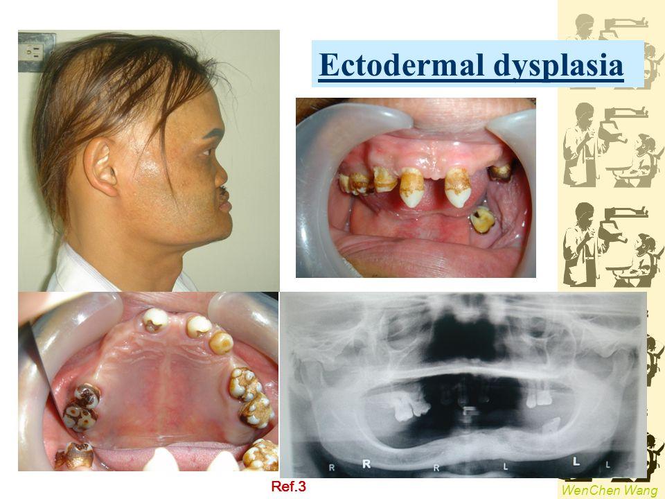 Ectodermal dysplasia Ref.3