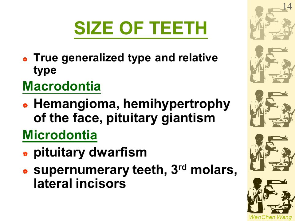 SIZE OF TEETH Macrodontia