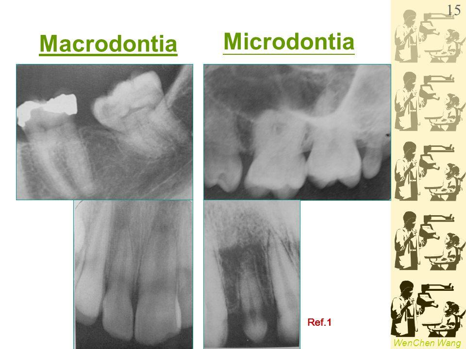 Macrodontia Microdontia Ref.1