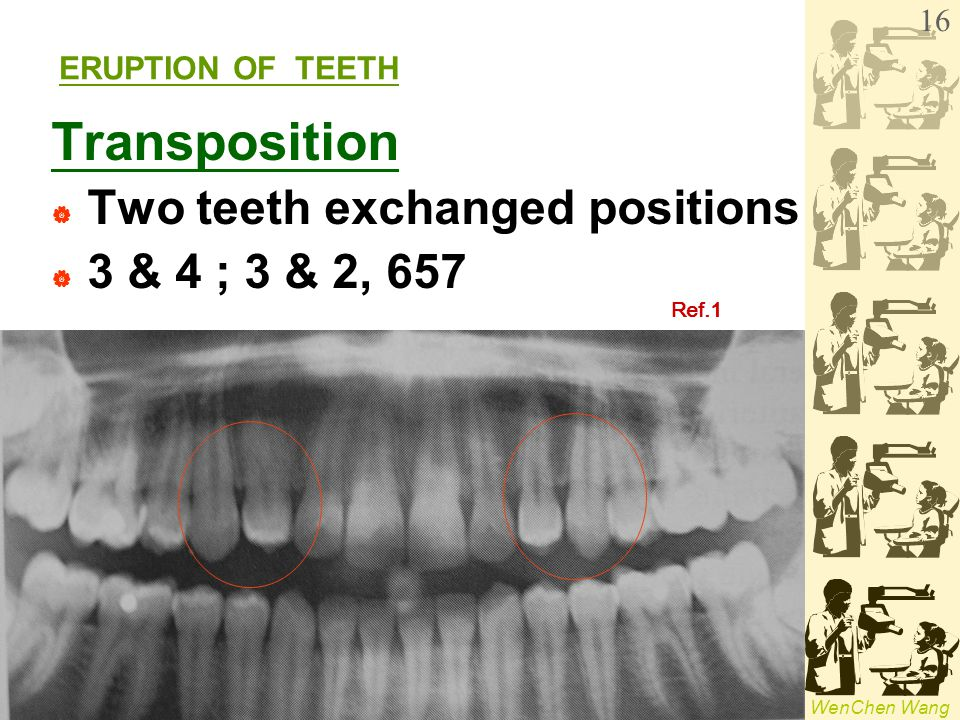 Transposition Two teeth exchanged positions 3 & 4 ; 3 & 2, 657