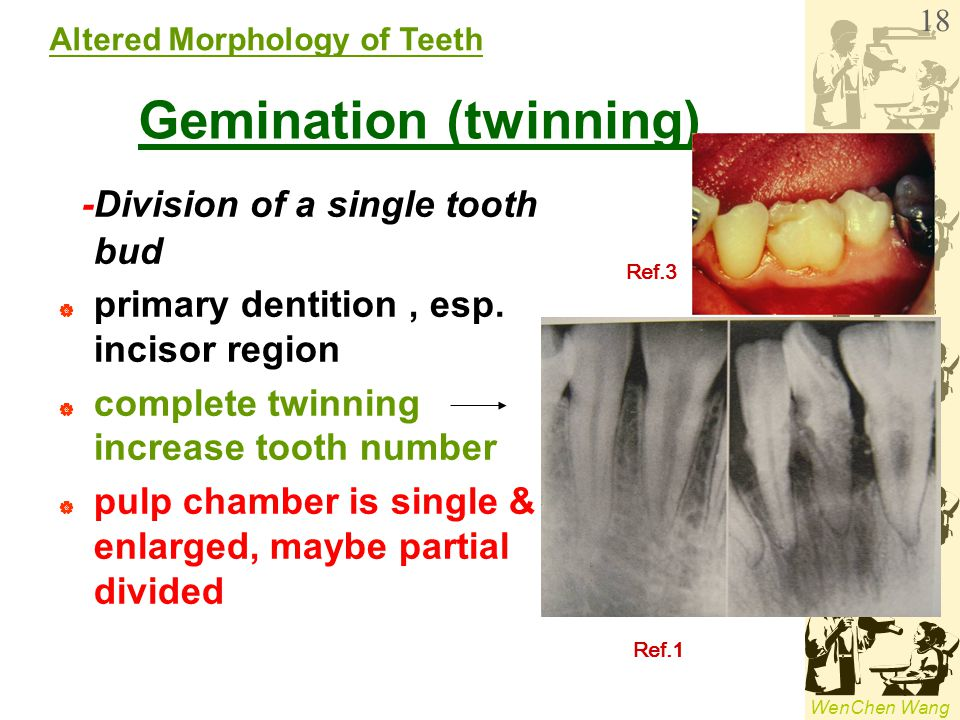 dental anomalies in radiology ppt video online download