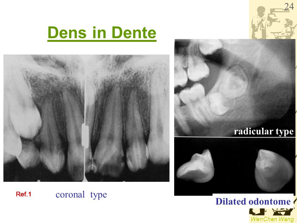 Dens in Dente radicular type coronal type Ref.1 Dilated odontome