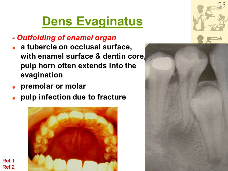 Dens Evaginatus - Outfolding of enamel organ