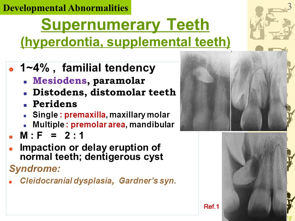 Supernumerary Teeth (hyperdontia, supplemental teeth)