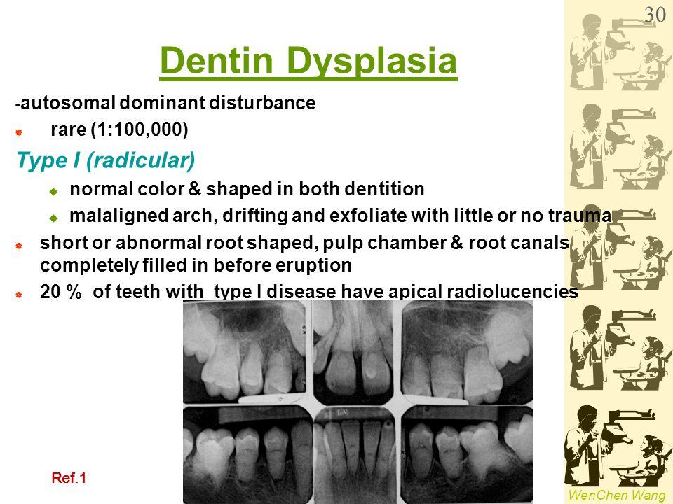Dentin Dysplasia Type I (radicular) rare (1:100,000)