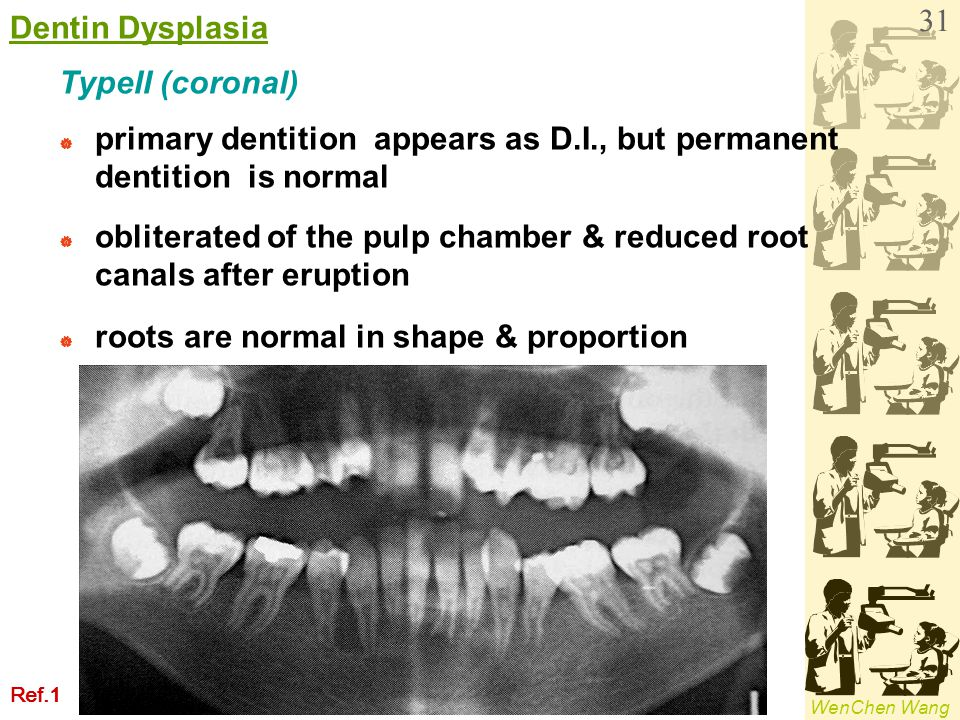 primary dentition appears as D.I., but permanent dentition is normal