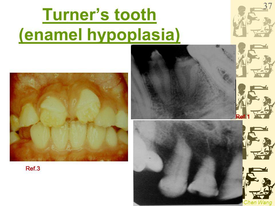 Turner's tooth (enamel hypoplasia)