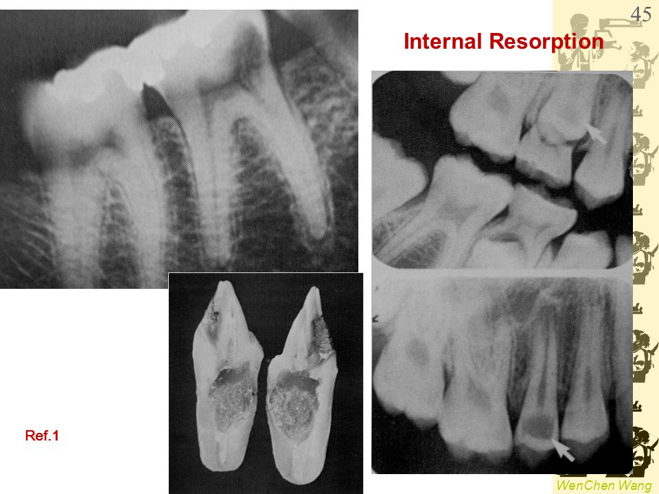 Internal Resorption Ref.1