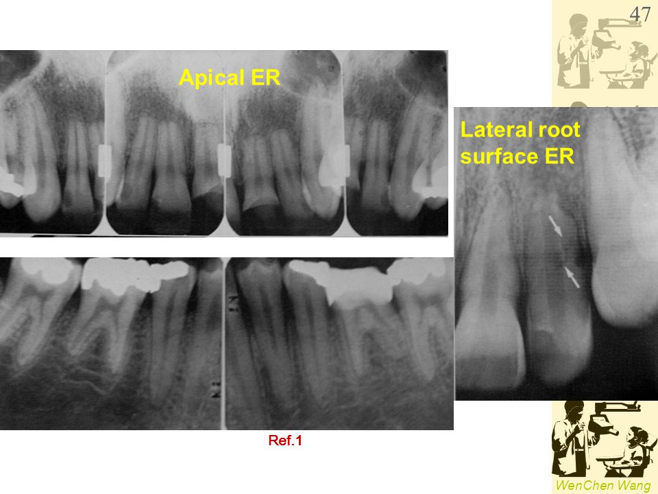 Lateral root surface ER