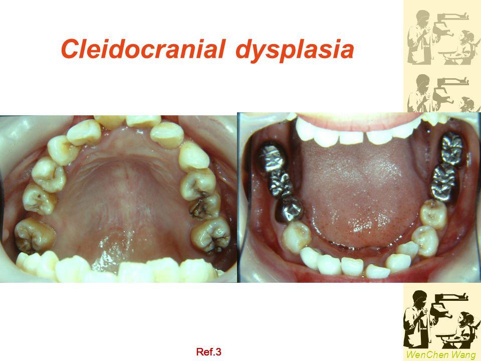 Cleidocranial dysplasia