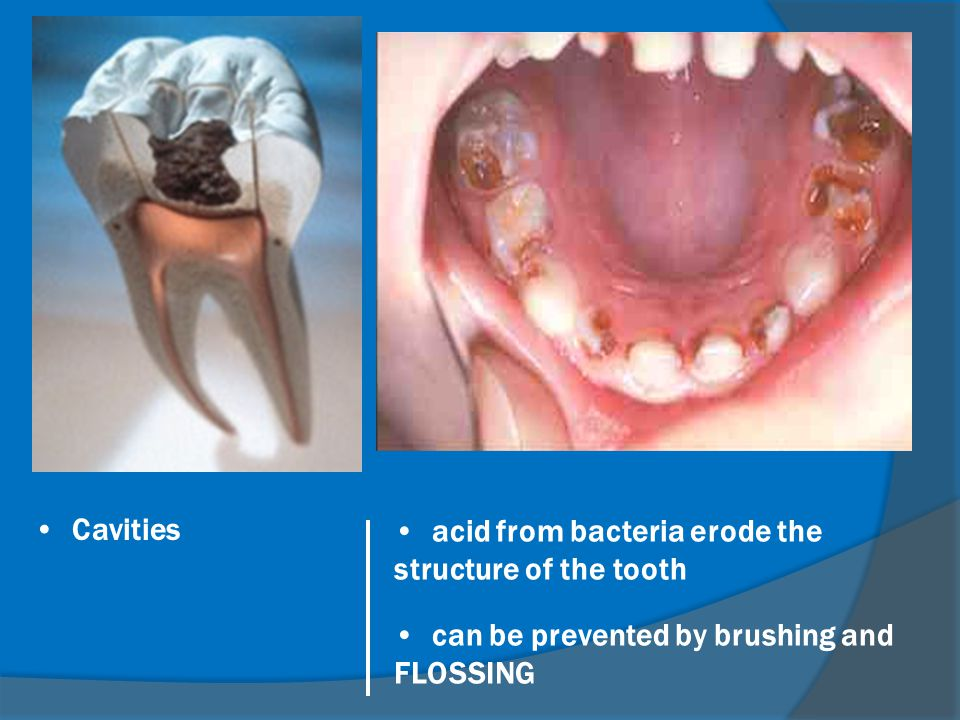 Cavities acid from bacteria erode the structure of the tooth.