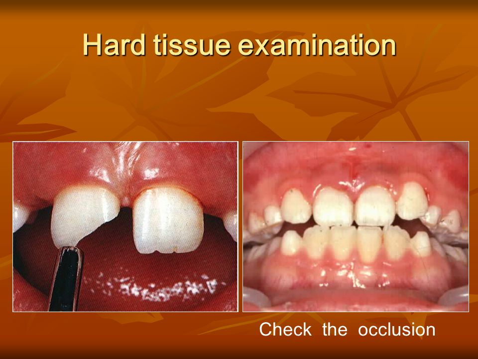 Hard tissue examination