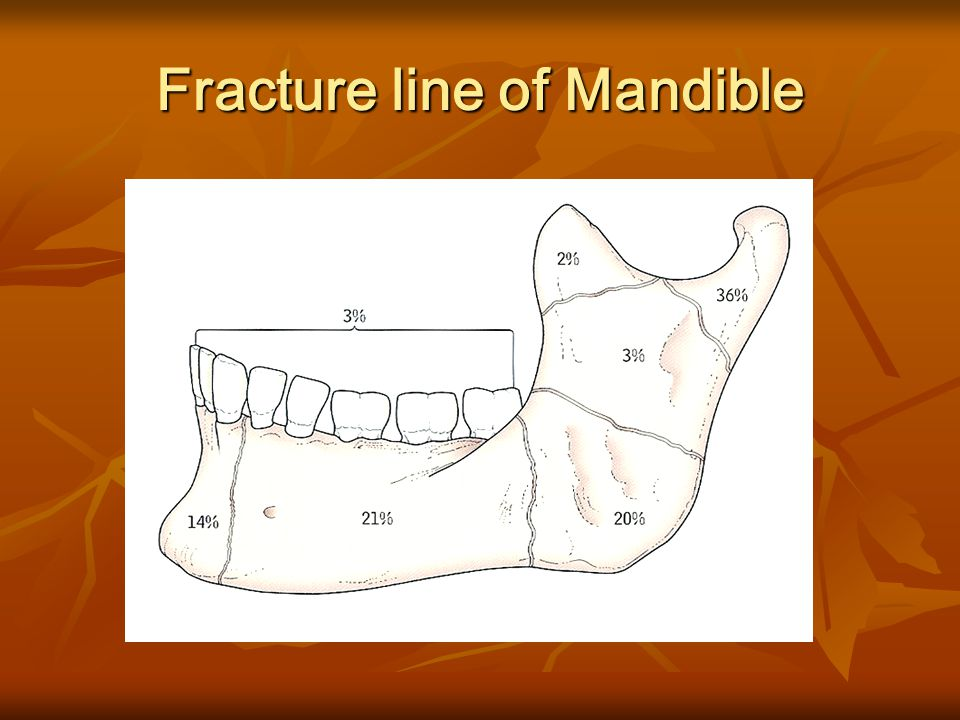 Fracture line of Mandible