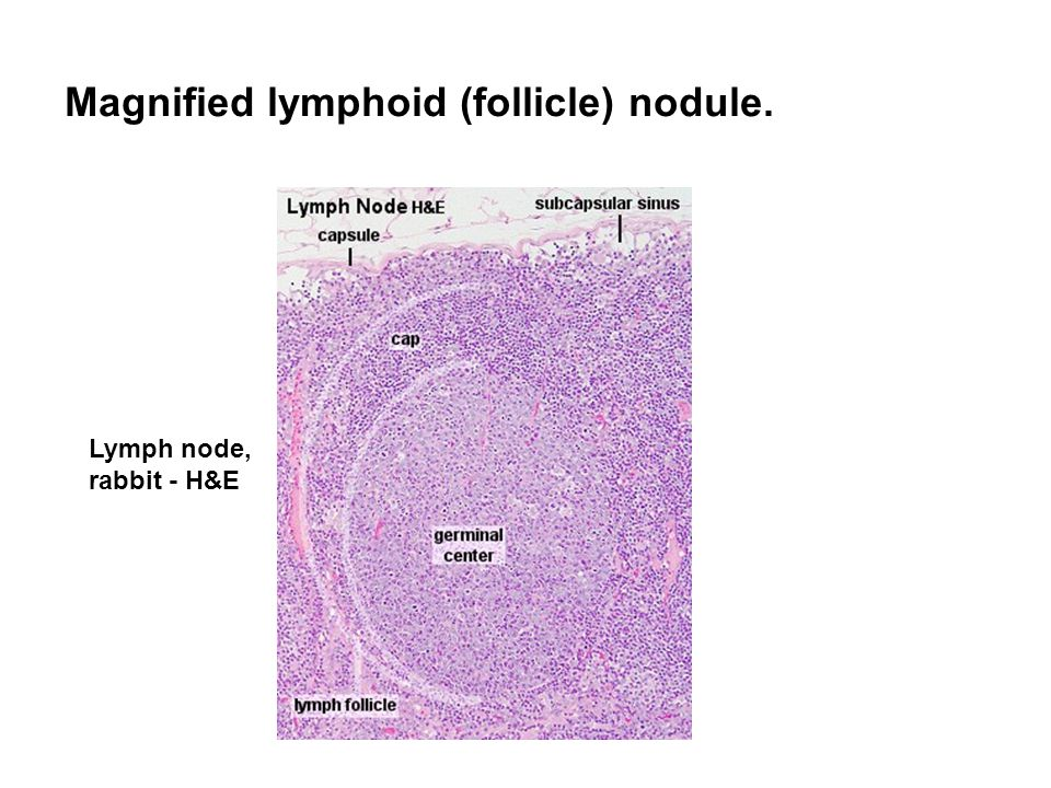 Magnified lymphoid (follicle) nodule.